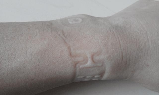 Temporärer Hautabdruck nach längerem Tragen